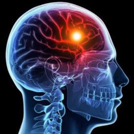 Что такое инсульт, чем опасен и что важно о нем знать?